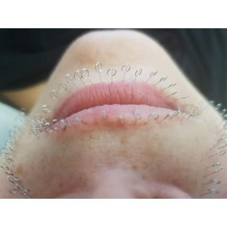 Powiększanie ust - akupunktura kosmetologiczna