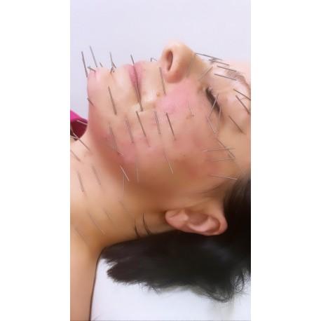 Enterodermalna akupunktura twarzy (połowa twarzy)